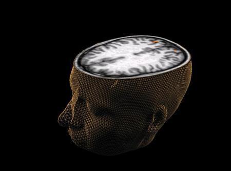 Beyin orgazmı nedir, bilim bu konuda ne diyor? 13