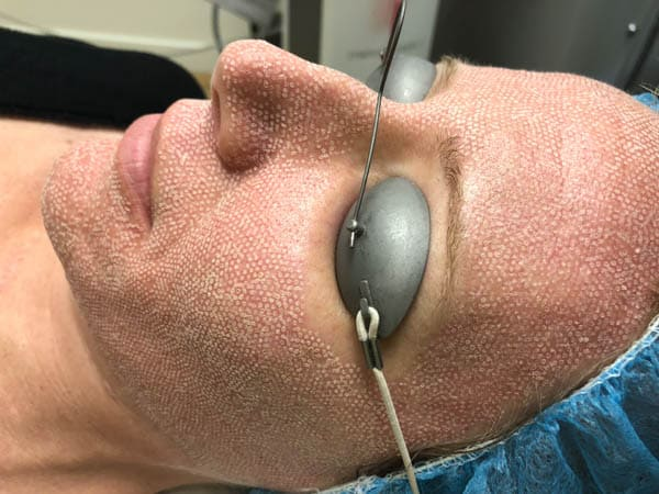 How the skin looks after laser resurfacing