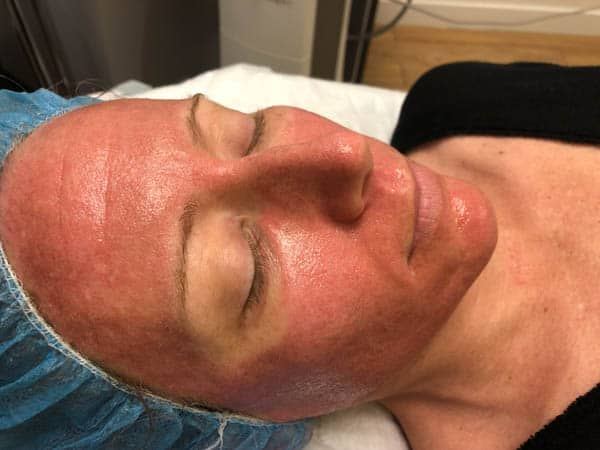 Is co2 laser treatment worth it