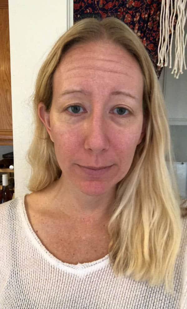My experience with laser treatment for the face