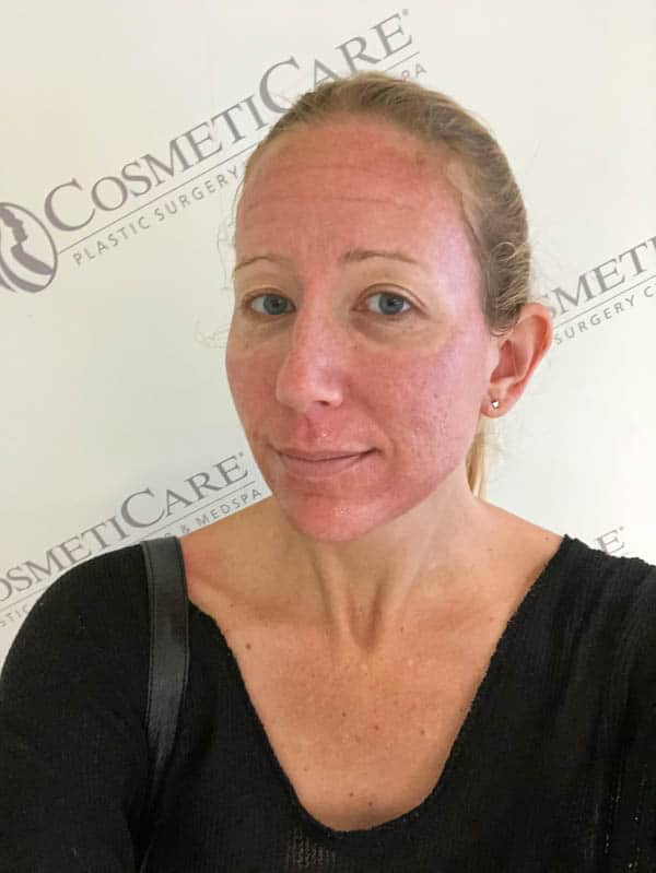 What does the laser facial recovery process look like