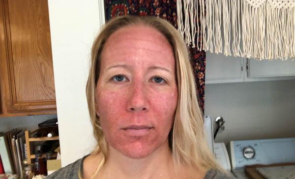after photos of a co2 laser facial