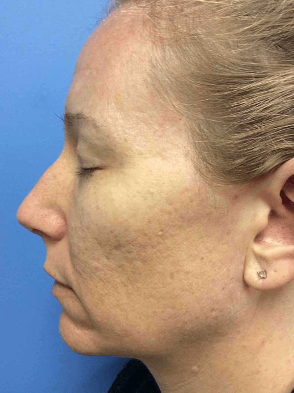 Before photo of my co2 laser skin resurfacing treatment