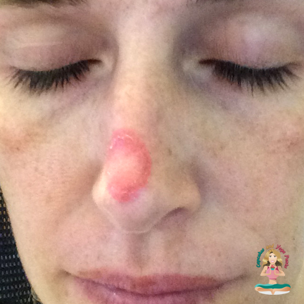 Rosacea Diagnosis: What's it Like to Have a Skin Biopsy?