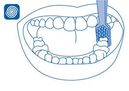 Local especial: Atrás da parte traseira do molar inferior (face distal)