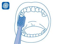 Local especial: Atrás dos molares superiores