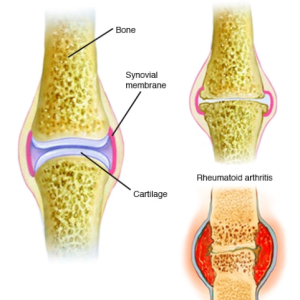 arthritis and rheumatism and osteoporosis