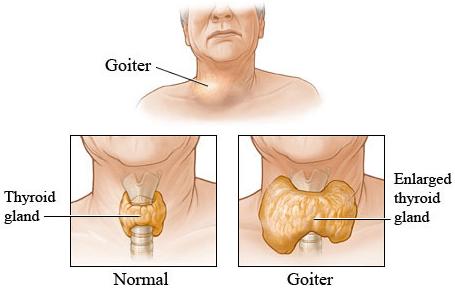 goiter treatment