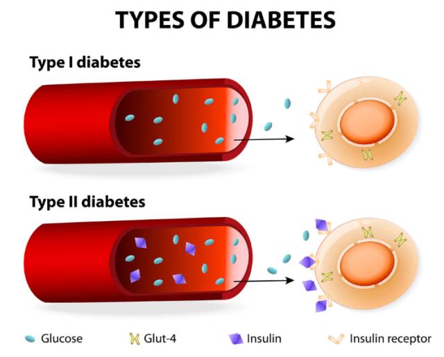 new diabetes