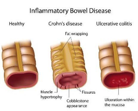 Inflammatory_Bowel_Disease-_Crohns_and_Ulcerative_Colitis_1_