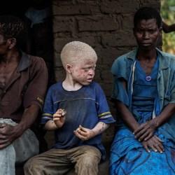 Les albinos des Grands Lacs africains