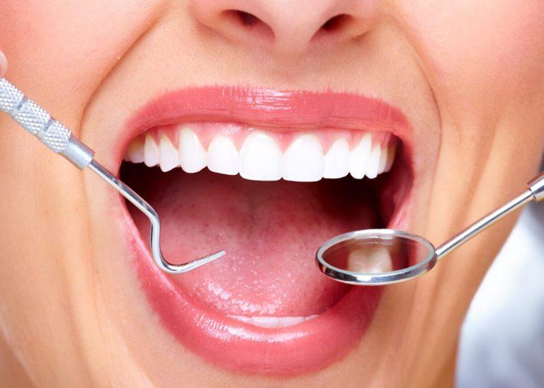 tratamientos de estética dental más solicitados
