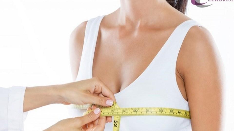Cirugía para reducir el tamaño del pecho