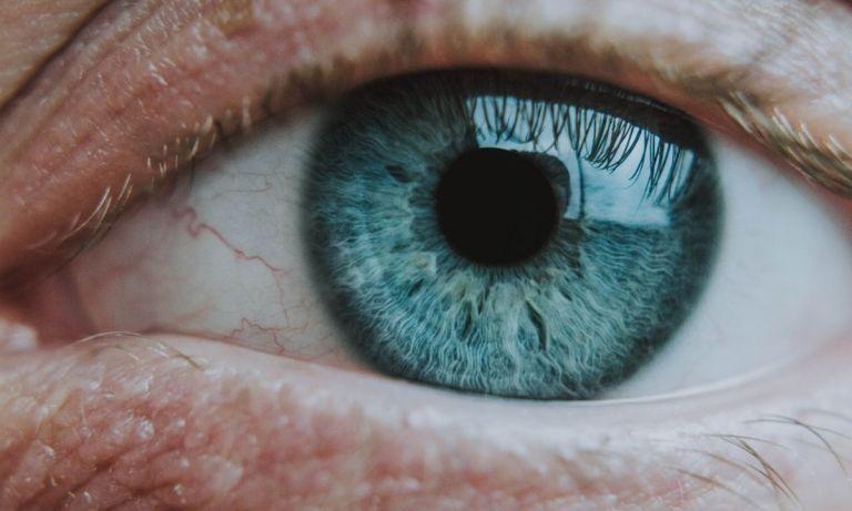 qué es el síndrome ojo de gato