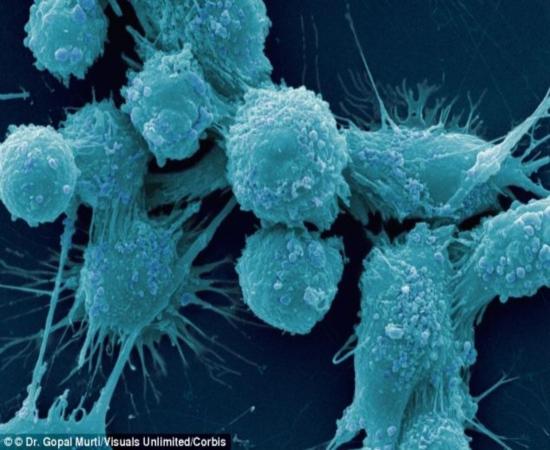 Células de câncer de útero