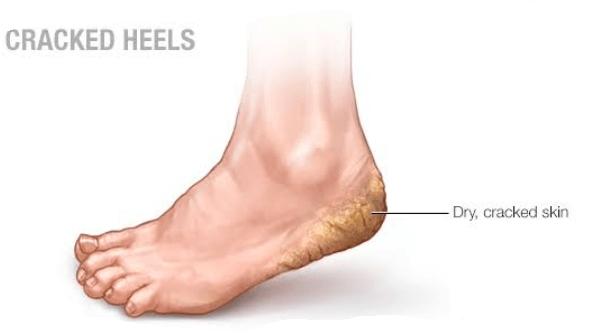 dry foot