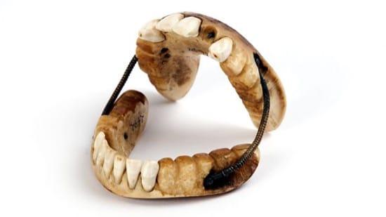 Dentadura postiza de hace un par de siglos