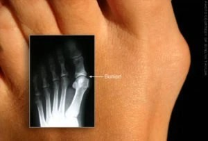 Picture of a bunion with an x-ray of the bunion