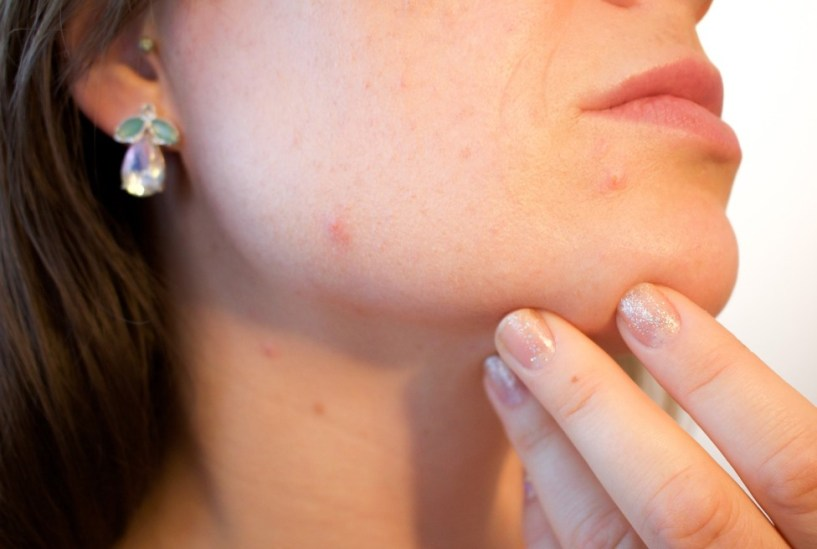 woman's face has Skin Rashes