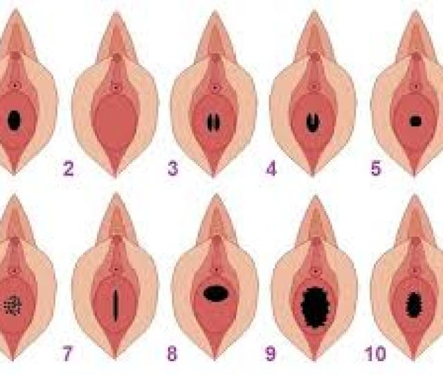 Types Of Hymen Shapes
