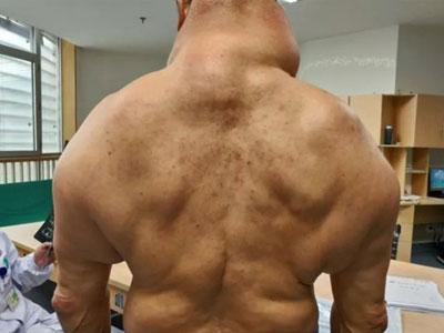 脂肪腫は首以外にも。一件、筋肉のようにも見えるが、すべて脂肪だという