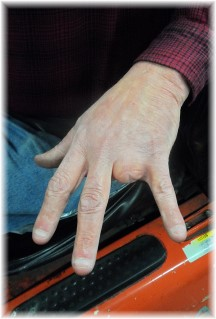 Missing ring finger