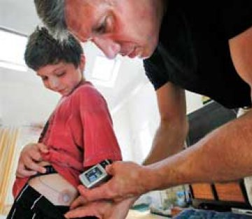 Dad Invents Bionic Pancreas For Diabetic Son