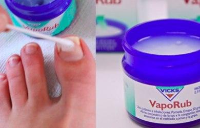 Vicks VapoRub Uses