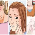 Symptoms of Hormonal Imbalance