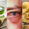 Home Remedies For Pink Eye