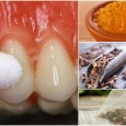 Homemade Toothache Remedies