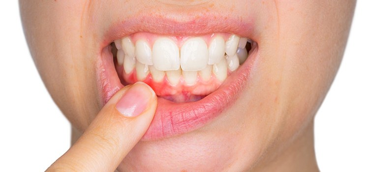 Signs and Symptoms of Gingivitis