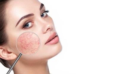 Reactive Skin Treatment