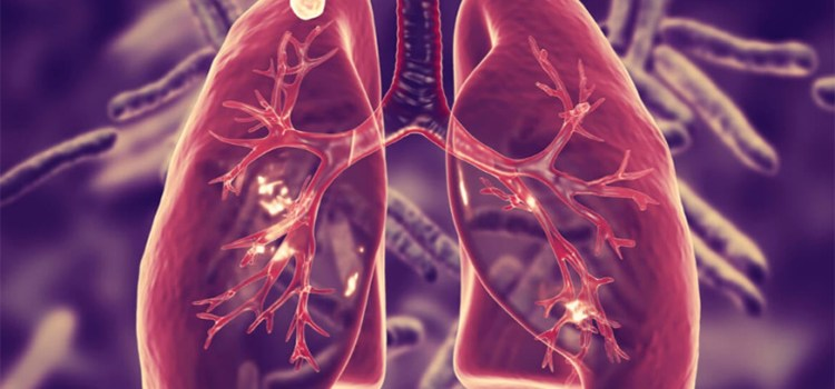 What is Pulmonary Tuberculosis