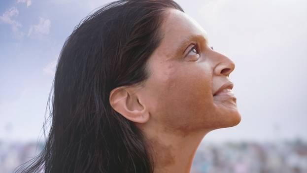 Shoaib Khan Recreates Deepika's Look From Chhapaak