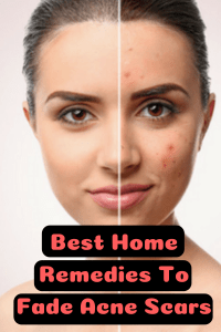 How To Fade Acne Scars Fast Naturally