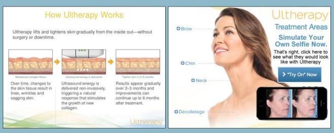 ultherapyslide - Ultherapy, el Lifting Sin Cirugía de Hollywood