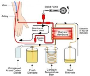 cuci darah