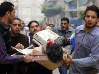 Korban kekerasan polisi dalam membubarkan aksi demo di Mesir (aljazeera)