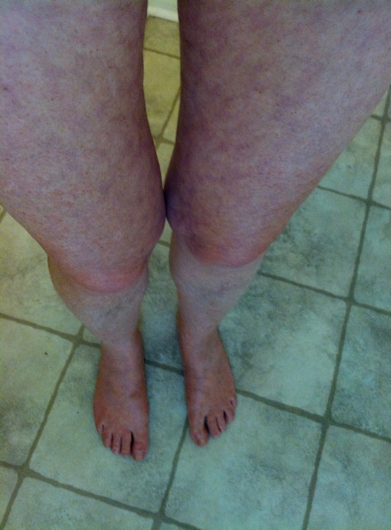 Photo of legs showing mottling