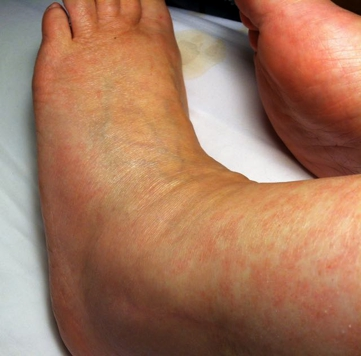 Swollen ankles due to Amantadine