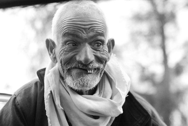 Man with half his teeth