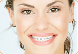 Braces and Wire Dental Clinic in Delhi