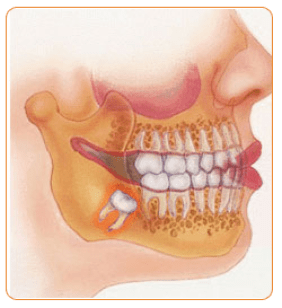 Oral-Maxillofacial Surgery Dentist in Safdarjung