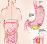 stomach-ulcer_s
