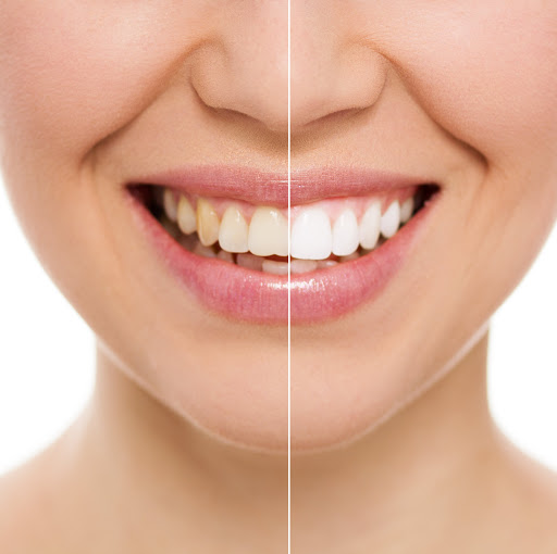 oral cosmetic solutions