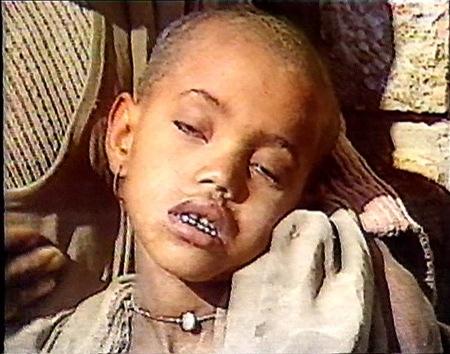 Live Aid Ethiopian Girl