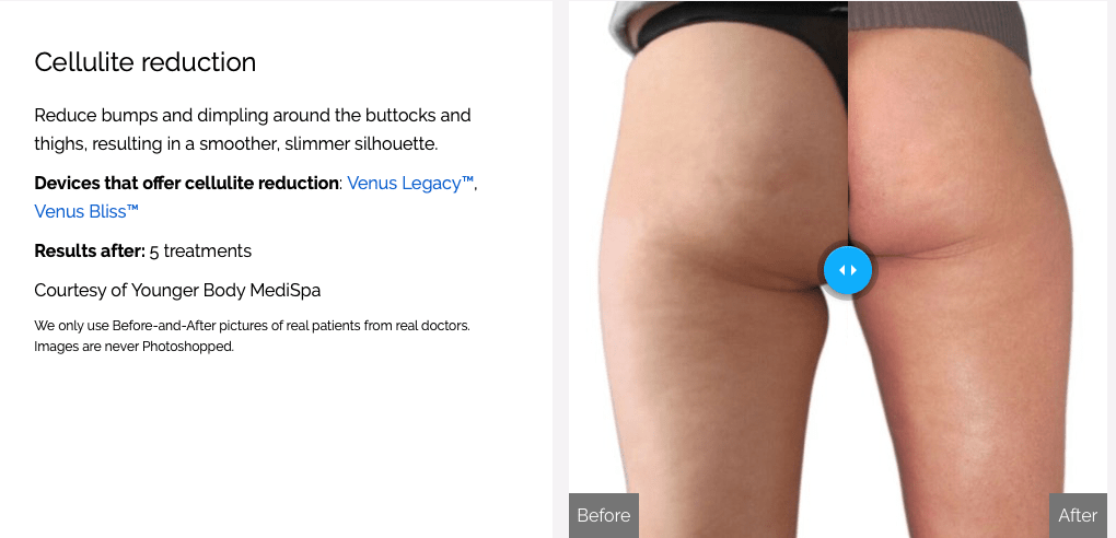 Butt Cellulite Reduction