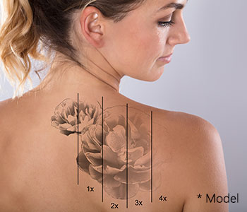 Tattoo Removal Near Me Beverly Hills - Is Tattoo Removal Successful