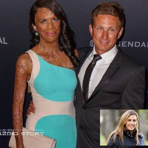 turia-pitt-and-michael-hoskin